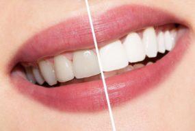 уход за зубами в Тюмени